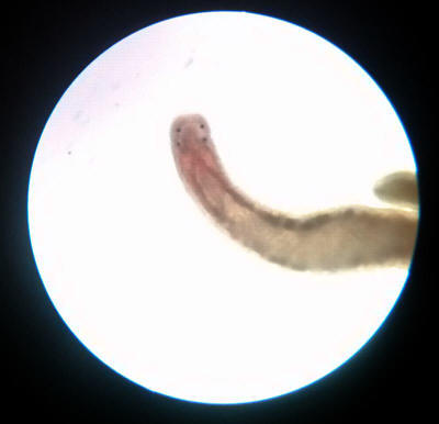 Faqs On Freshwater Worm Parasitic Diseases Treatments